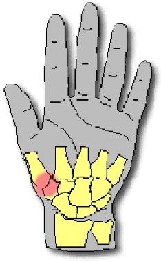 La rizoartrosi è una forma di artrosi che colpisce l'articolazione alla base del primo dito, il pollice. Il dottor Giuseppe Checcucci, Chirurgo chirurgo ortopedico dell'arto superiore, è specializzato nel trattamento della rizoartrosi e riceve a Firenze, Arezzo ed Empoli. I tempi di attesa sono estremamente rapidi.