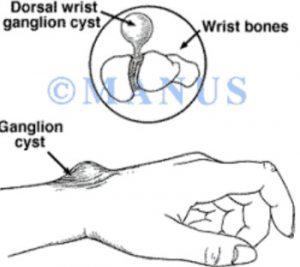 La cisti artrogena è caratterizzata da grumi o protuberanze sul polso. Il dottor Giuseppe Checcucci, Chirurgo Ortopedico specialista in chirurgia dell'arto superiore, è specializzato nel trattamento ambulatoriale e chirurgico della cisti artrogena