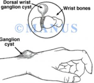 Cisti artrogena
