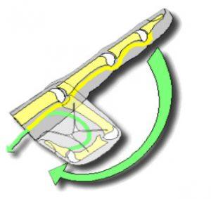 Il dito a scatto, termine con il quale comunemente viene definita la tenosinovite stenosante, è una patologia che si manifesta con il movimento irregolare del dito, in particolar modo del pollice o dell'anulare.