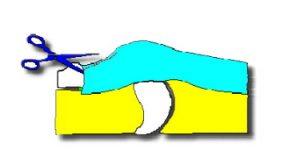 L'intervento chirurgico per la cura del dito a scatto è effettuato con anestesia locale e consiste nell'apertura della puleggia che impedisce il corretto scorrimento del tendine, così da ripristinare il corretto movimento del dito.