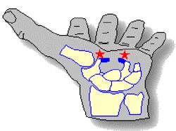 Il rilascio del tunnel carpale è la procedura chirurgica adottata per la risoluzione della sindrome